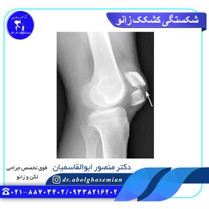 شکستگی کشکک زانو