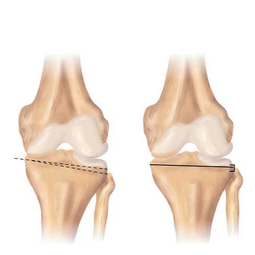 جراحی استئوتومی زانو